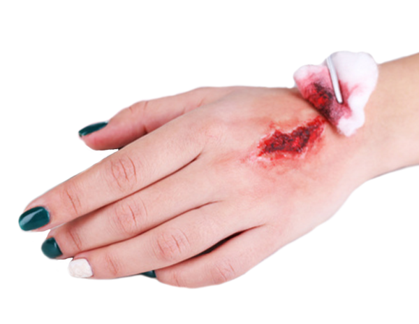 picture of an acute wound that can be healed by using a wound vac