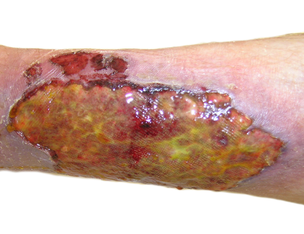 picture of a chronic wound on a transparent background for wound vac rentals