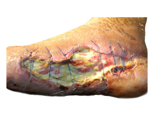 picture of a dehisced wound on a foot that you can use a wound vac on